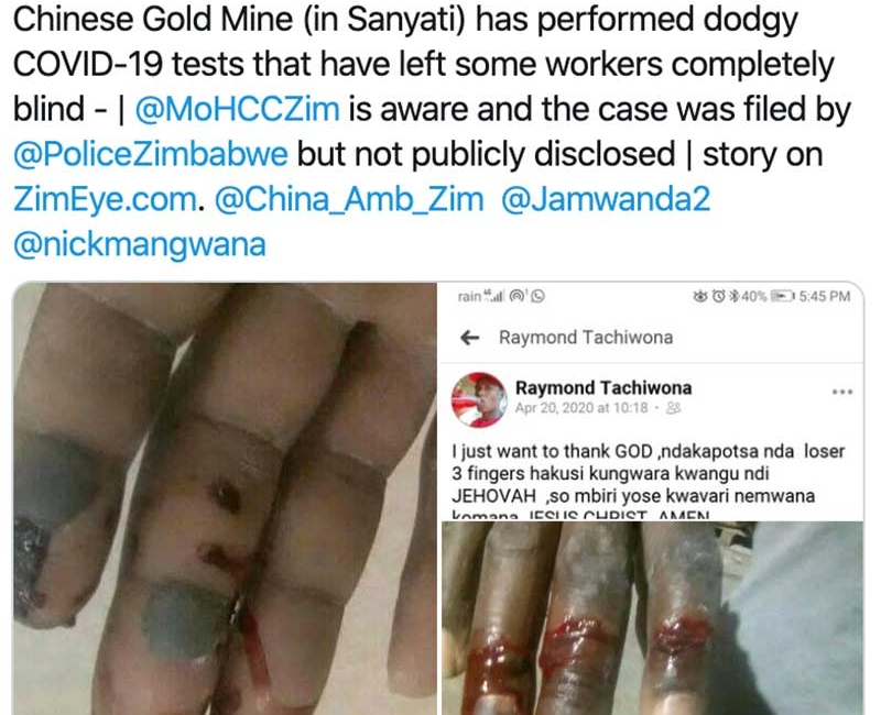 """Report: Workers at a Private Chinese Mining Company in Zimbabwe Blinded From """"Dodgy"""" COVID-19 Tests, Embassy Responds Defensively"""